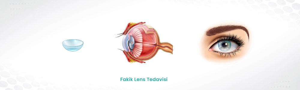 Fakik Lens Tedavisi