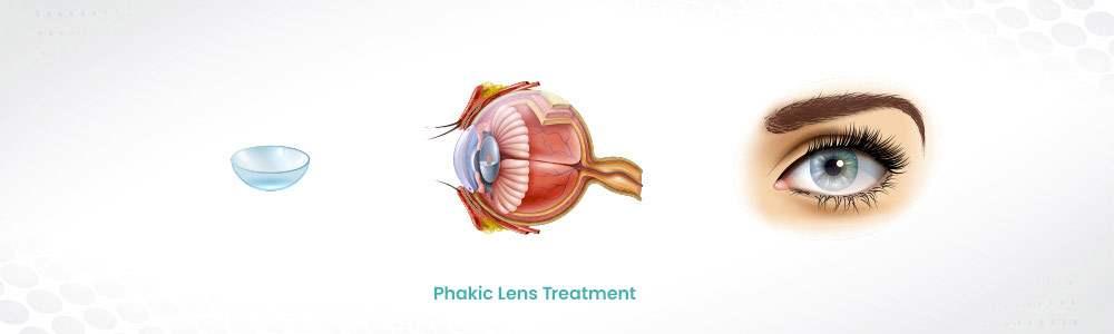 Phakic Lens Treatment