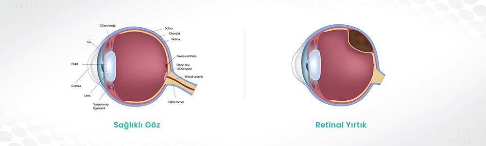 Retina Yırtılması