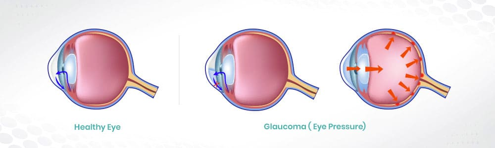 Glaucoma ( Eye Pressure)